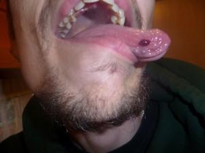 ampoule-langue